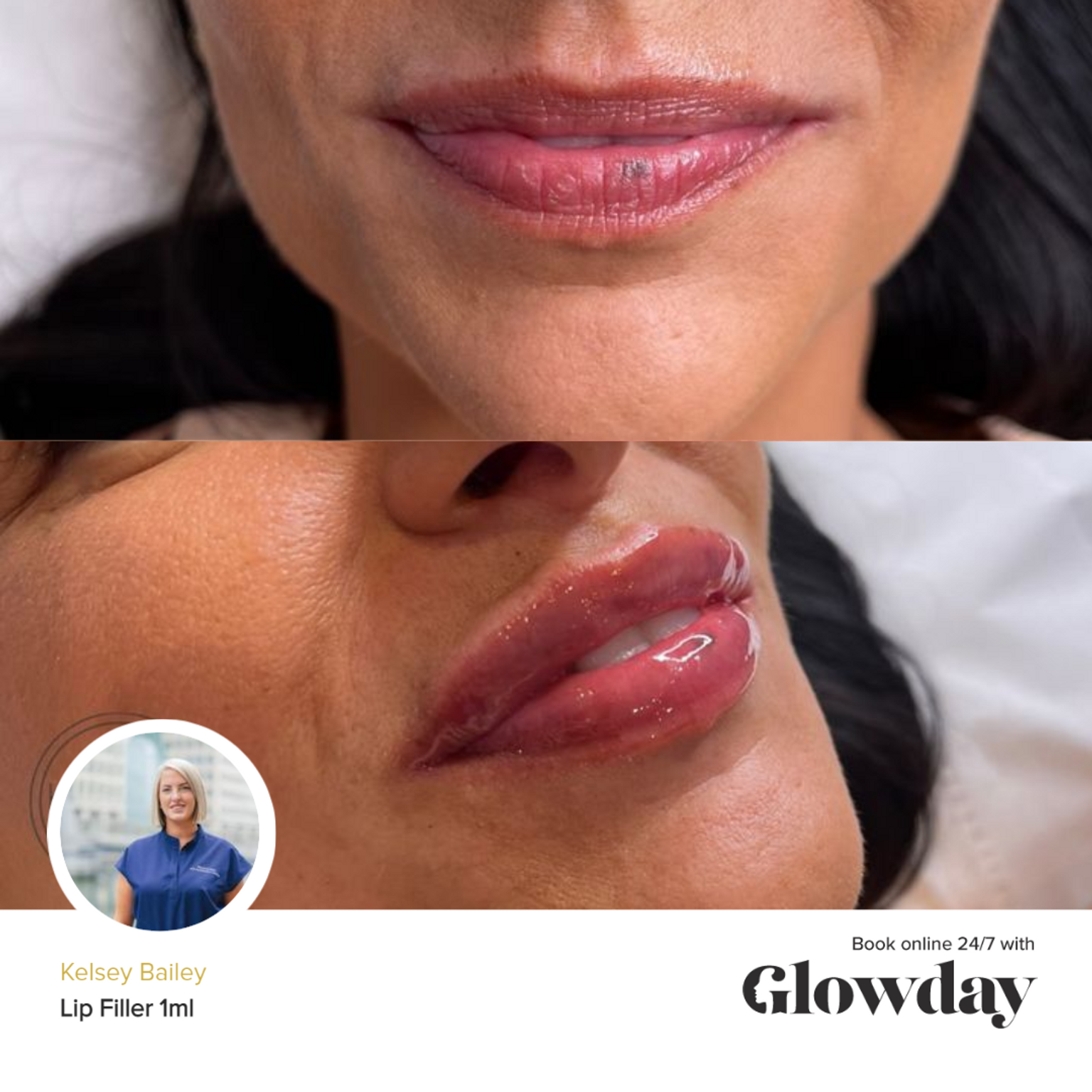 Kelsey Bailey Before and After Lip Fillers - Glowday