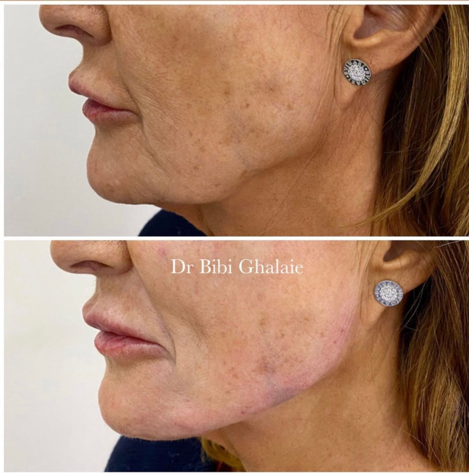 Dr Bibi - Jawline filler before and after - Glowday