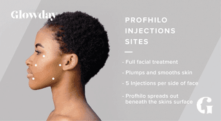 Profhilo Injection Sites