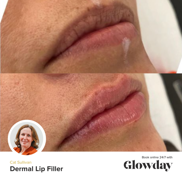 Lip Fillers Before And After - Cat Sullivan - Glowday