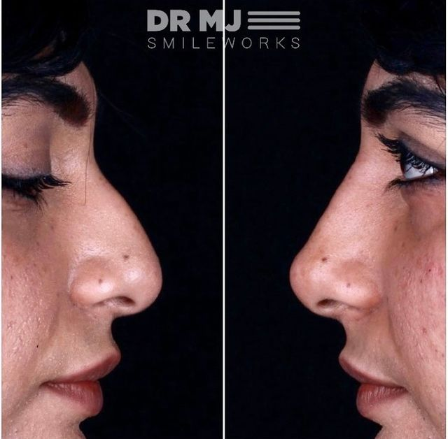 Liquid nose job before and after