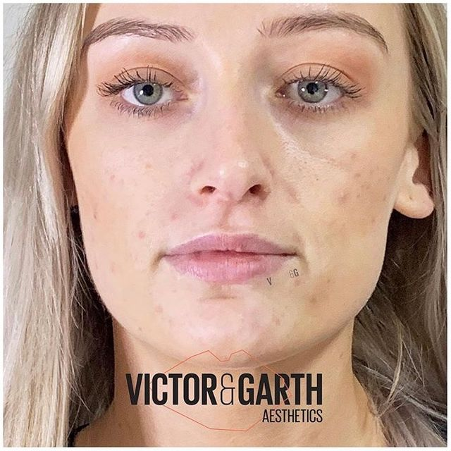 Dr Lauren Hamilton - lips before filler - Glowday