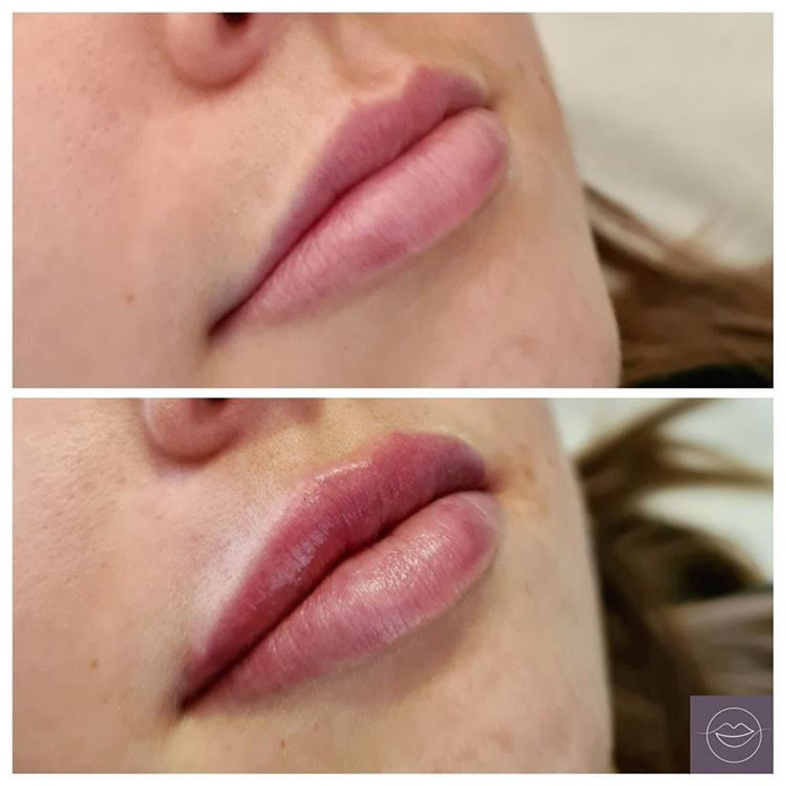 Charine Patel lip filler before and after - Glowday