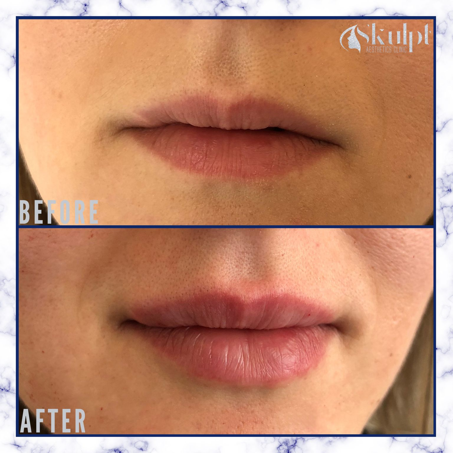 Jesal lip filler before and after image