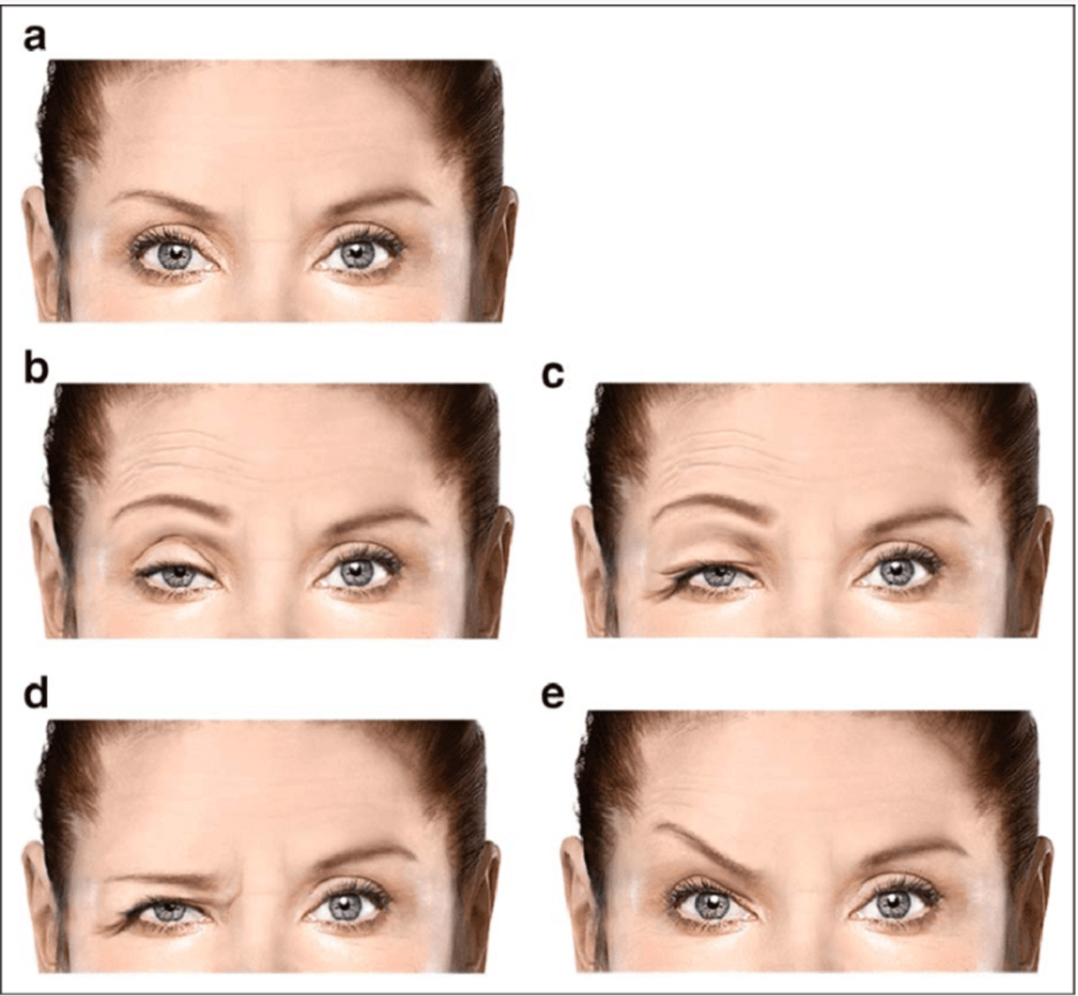 Image B) is an example of lid ptosis; image D) is an example of brow ptosis. Image credit: https://www.researchgate.net/figure/Various-depictions-of-ptosis-a-No-ptosis-b-Lid-ptosis-with-compensatory-frontal_fig2_315827436