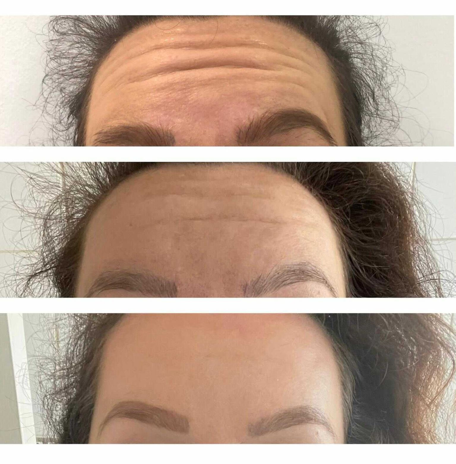 Chelsea's Botox before and after results