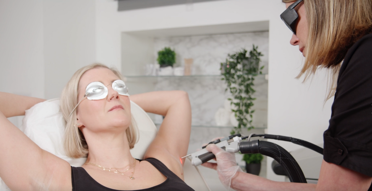 Glowday's Hannah tries out underarm laser hair removal