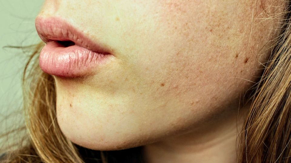 banner for Lip fillers: The questions on everyone's lips