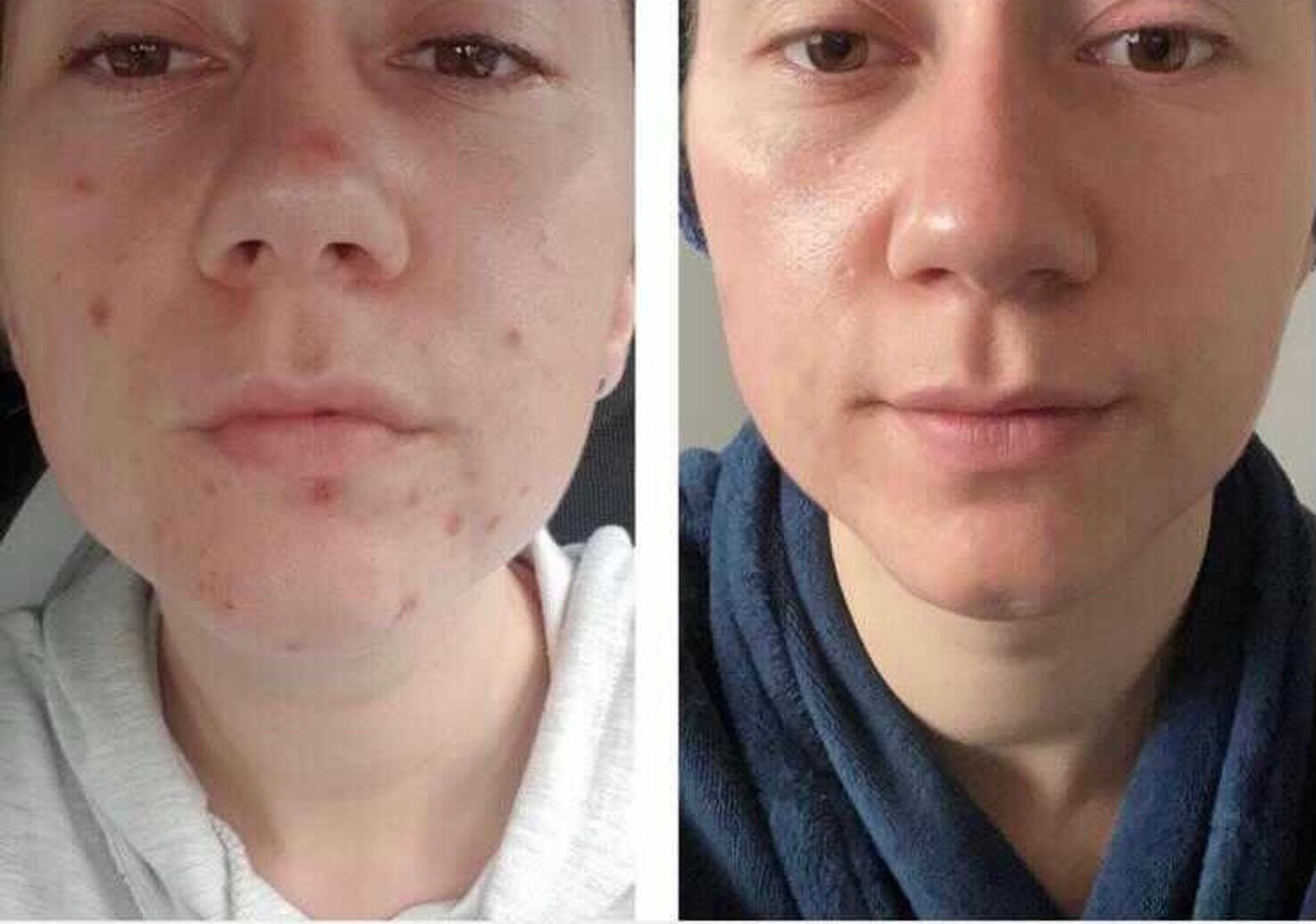 Chelsea's chemical peel before and after images