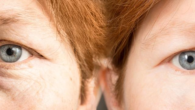 banner for How To Treat Eye Wrinkles