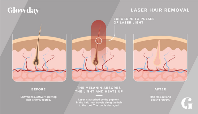 How laser hair removal works