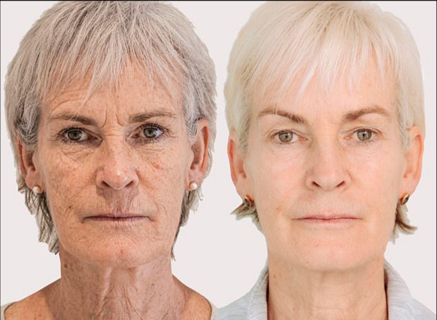 Judy had three sessions of the Morpheus8 treatment over the course of a year, alongside the Obagi NuDerm system and looks amazing as a result (Photo credit: Cavendish Media)