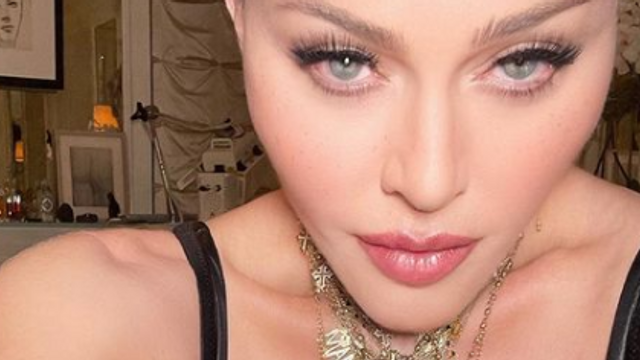 banner for Filters or Botox? Madonna's Shock Transformation!