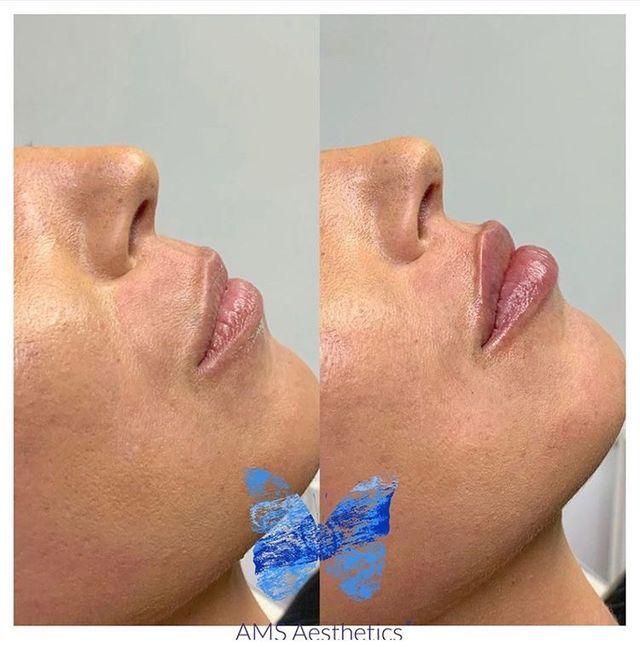 Amar Suchde, AMS - lip filler before and after - Glowday