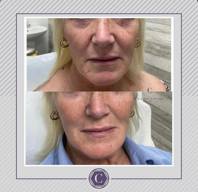 Midface fillers before and after