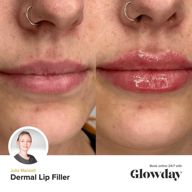 Lip Fillers Before And After - Julia Mansell - Glowday