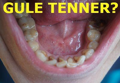 TANNBLEKING? Ikke kjøp blekemidler på nett og bruk dem hjemme. Bleking kan gi varige skader og bør kun gjøres på tannklinikk.