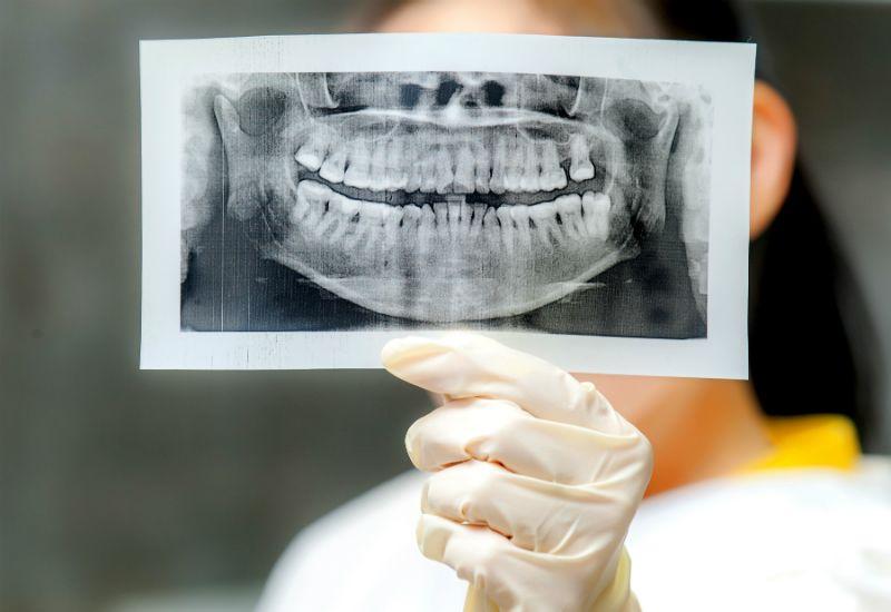Tannpleier holder røntgenbilde av munn (foto: colourbox.com)