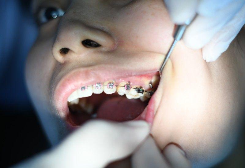 REGULERING: Reguleringen må vanligvis være på i to år. Vær nøye med tannpussen! Foto: Atikah Akhtar/Unsplash
