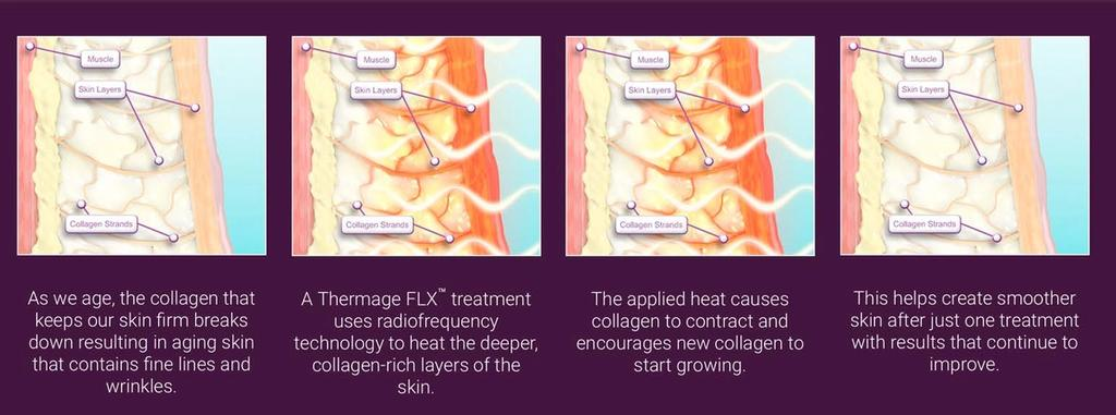 Steps on how Thermage FLX works