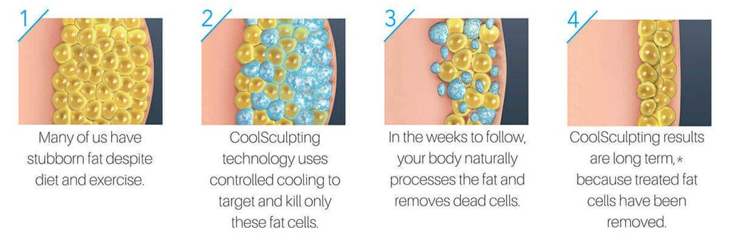 Steps on how Coolsculpt Fat Freezing works