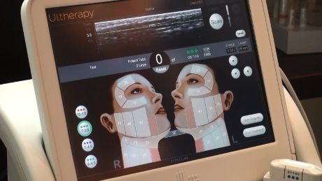 Ultherapy imaging device