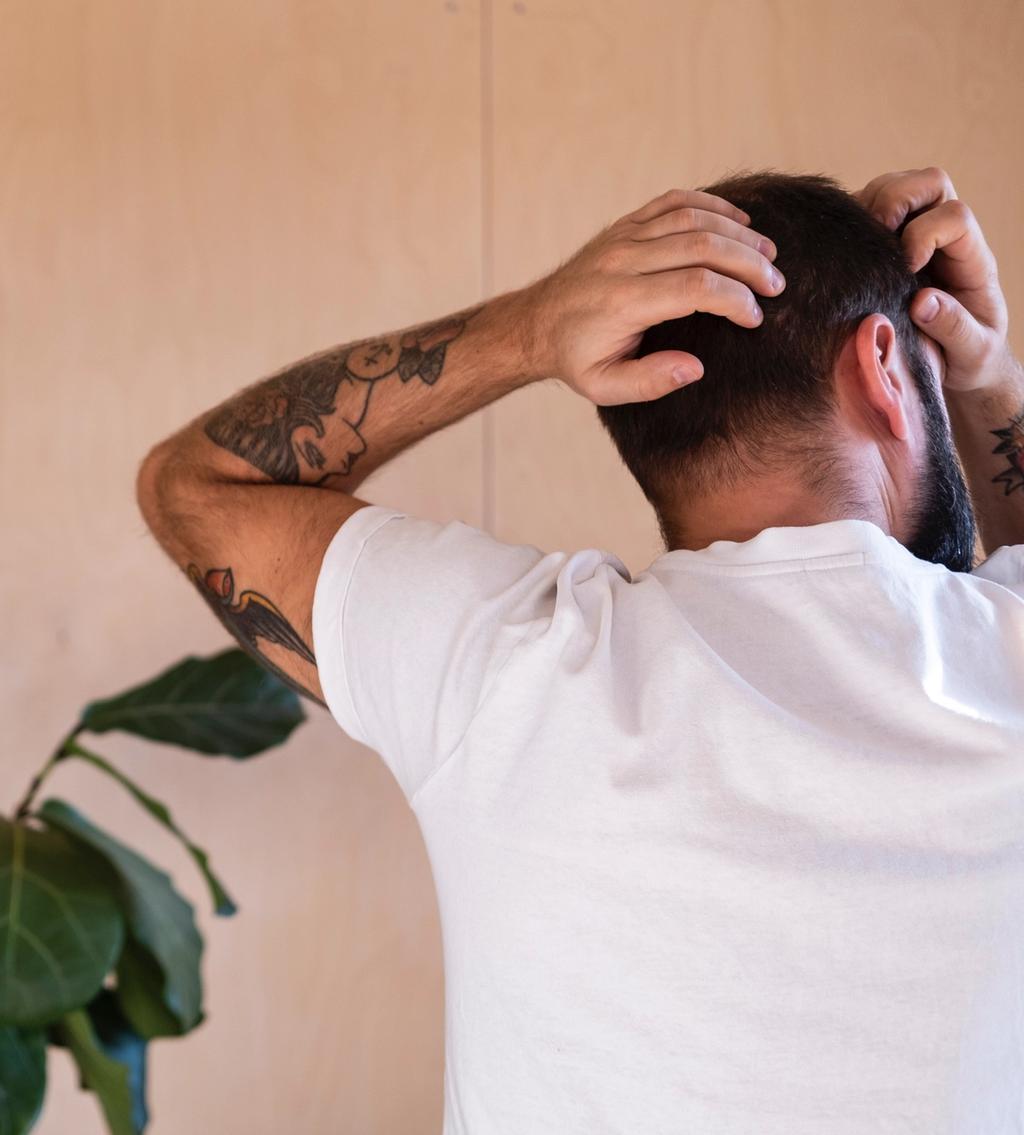 Mannlig hårtap – De ulike formene for alopeci og hva det kan skyldes