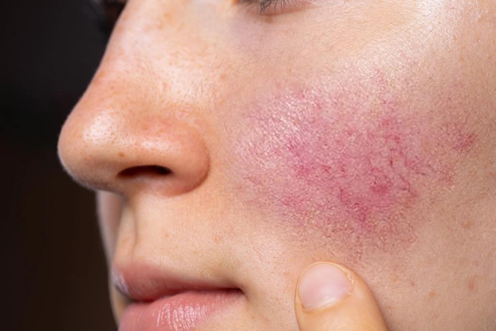 Bilde av rosacea på kinnet