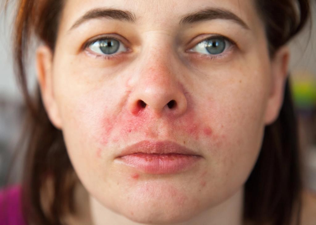 Bilde av perioral dermatitt