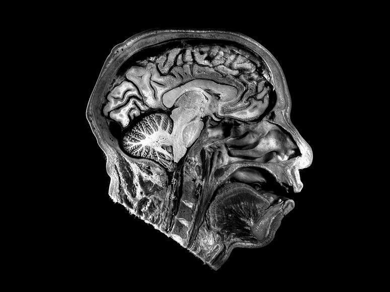 An MRI of the human brain.