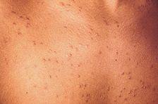 Heat - Heat rash blisters on skin