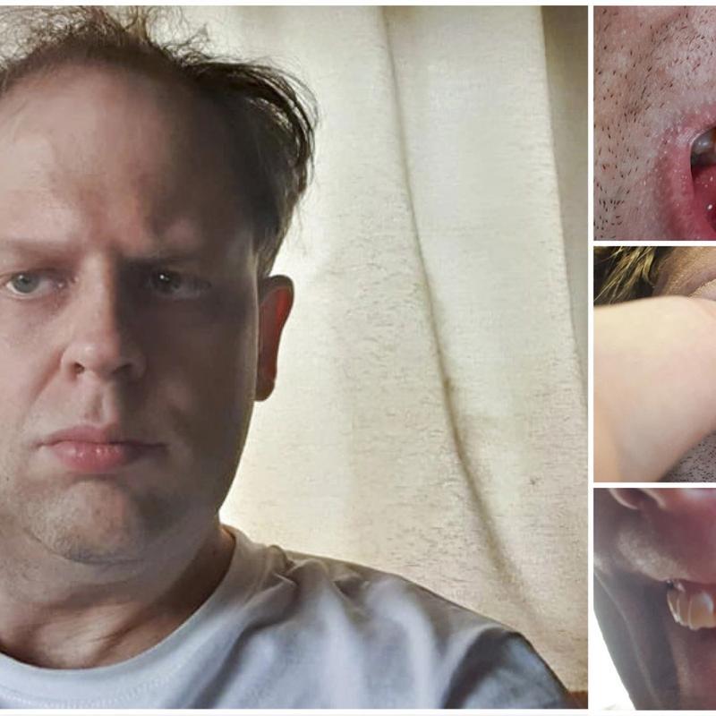 TRENGER BEHANDLING: Man trenger ikke tannlegeutdannelse for å se at Lars Henrik Jensen har behov for tannlegebehandling, men uten penger sliter han med å få hjelpa han trenger. FOTO: PRIVAT