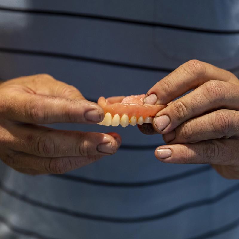 BRUKER GEBISS: Stian White Brua har mistet alle tenna i overkjeven som følge av en fedmeoperasjon han tok for fem år siden. Foto: Tom Henning Bratlie