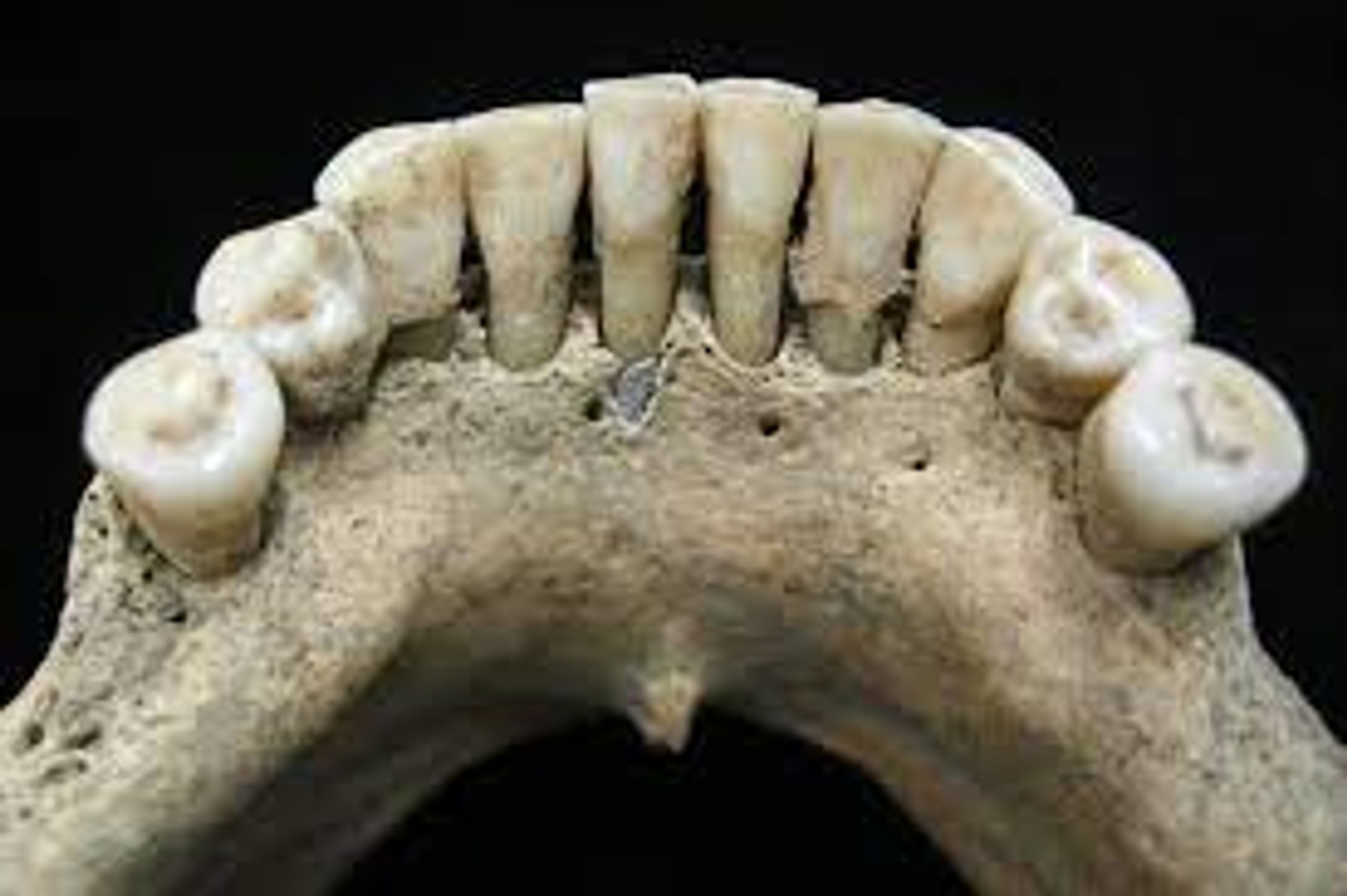 Teeth stained with Lapis Lazul.