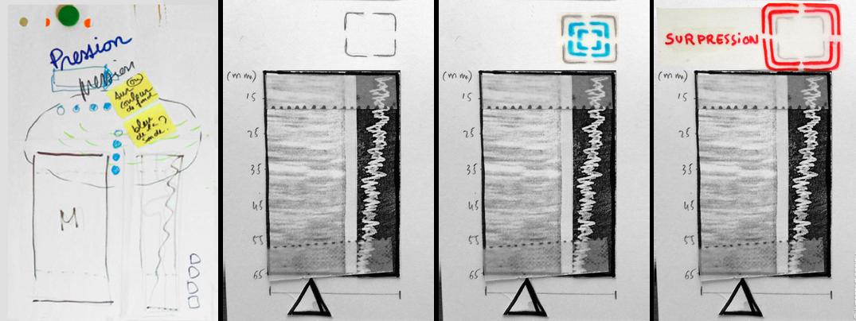 Storyboard design d'interface fibroscan