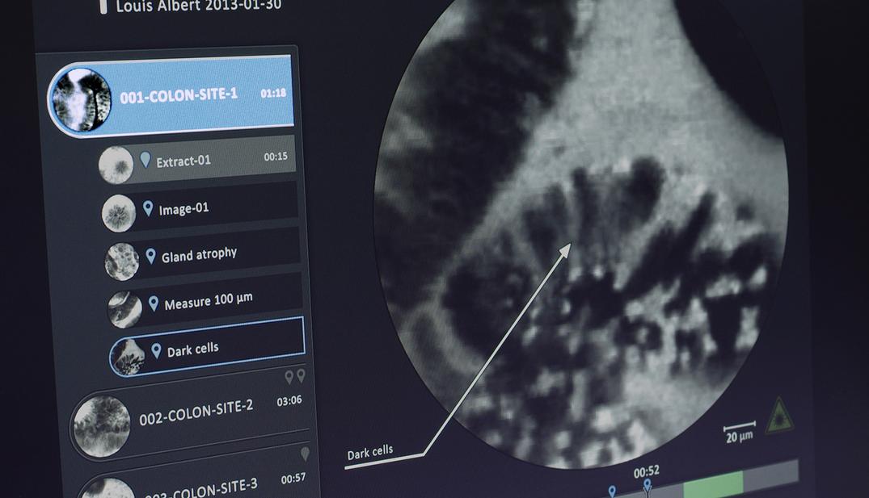 UX UI design interface médicale