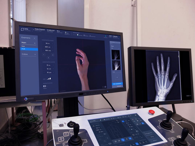 Mock-up de deux interfaces de radiographie fonctionnant ensemble