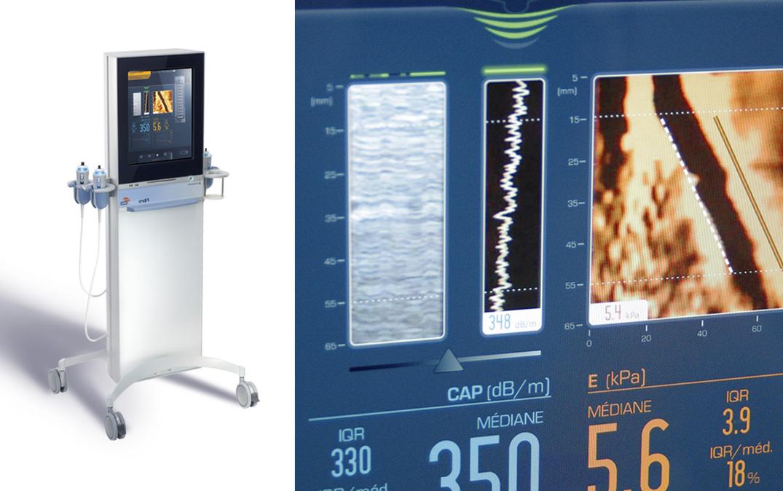 Le produit Fibroscan et son interface médicale tactile