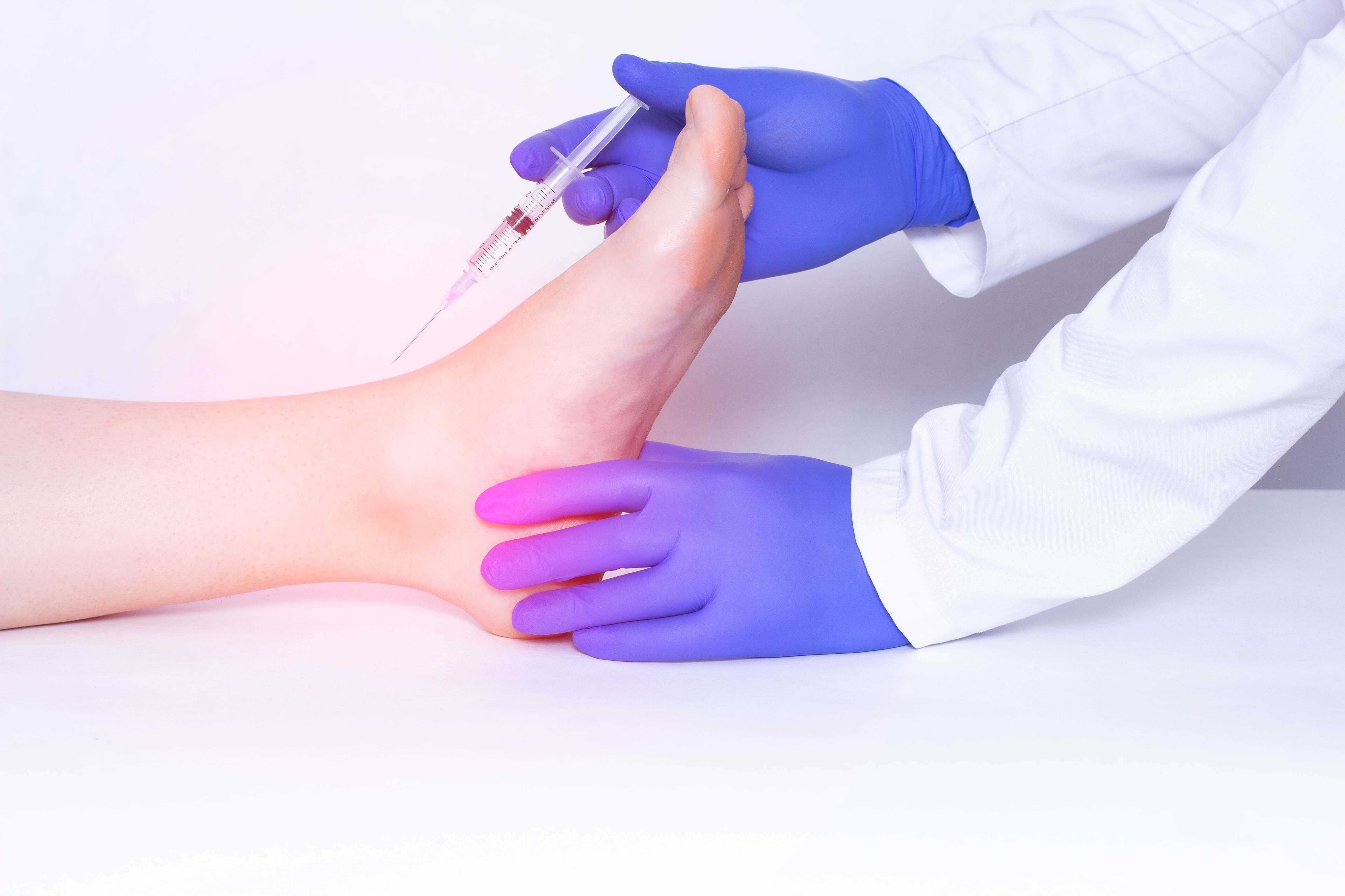 Stem cells being injected into the foot