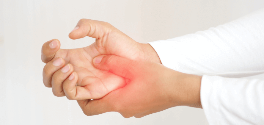 Lupus Arthritis