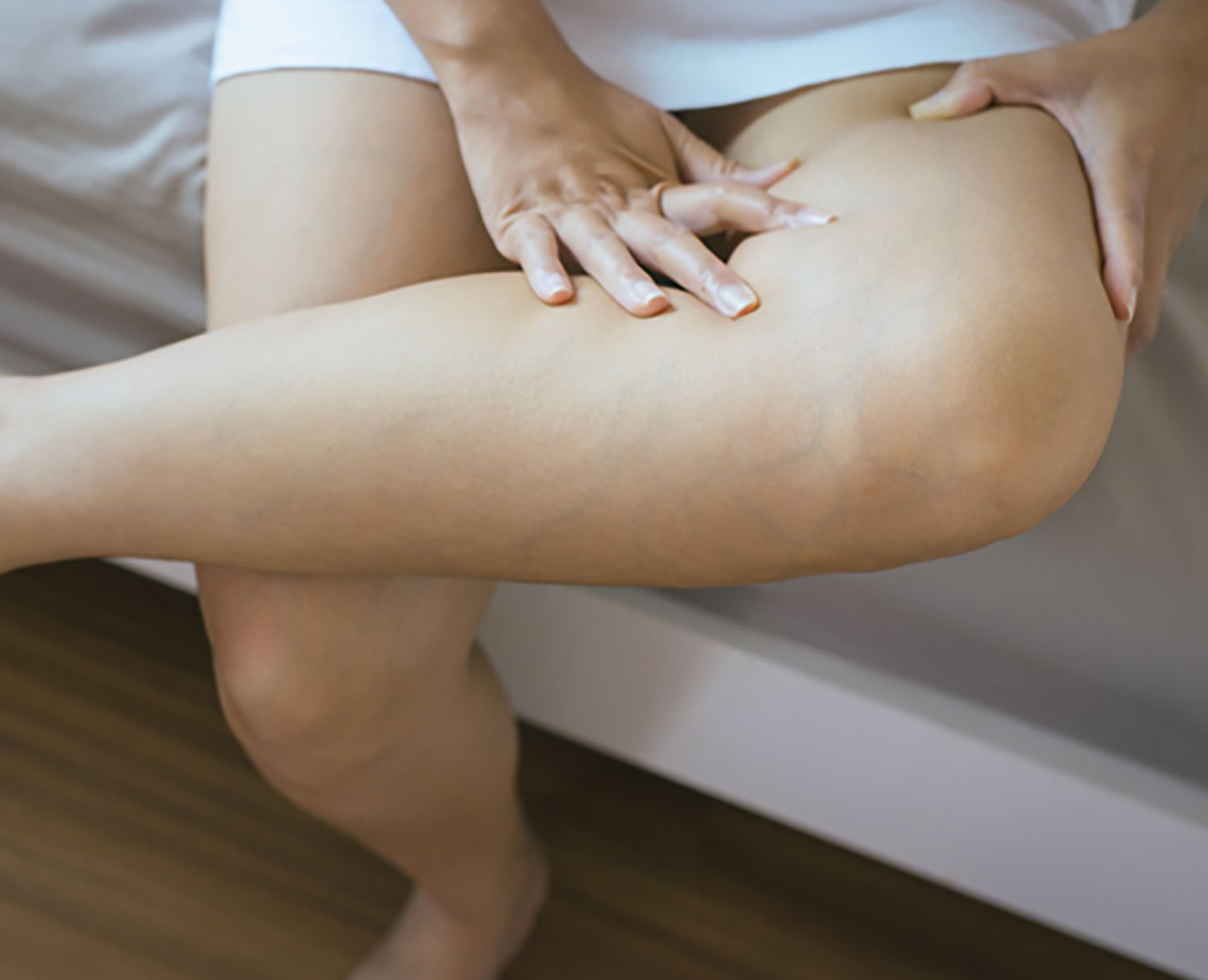 spider veins therapy