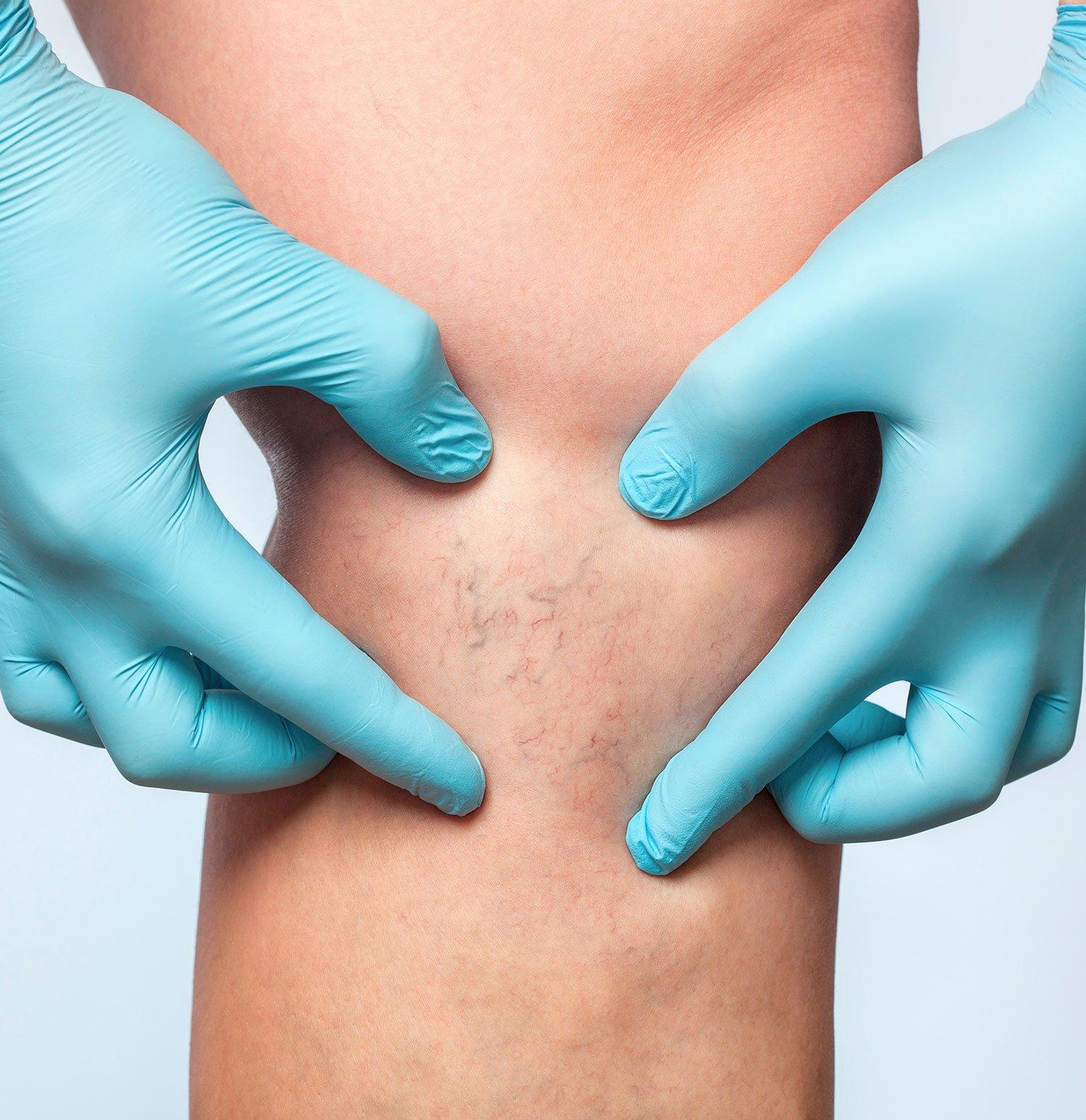 venous insufficiency treatment
