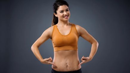 Asian women with stretch marks on belly