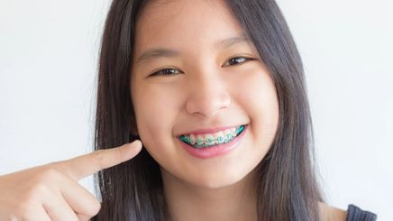A woman smiling with braces