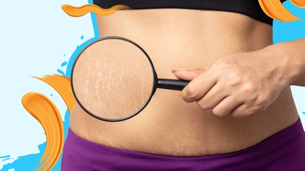 A woman holding a magnifying glass to show her stretch marks