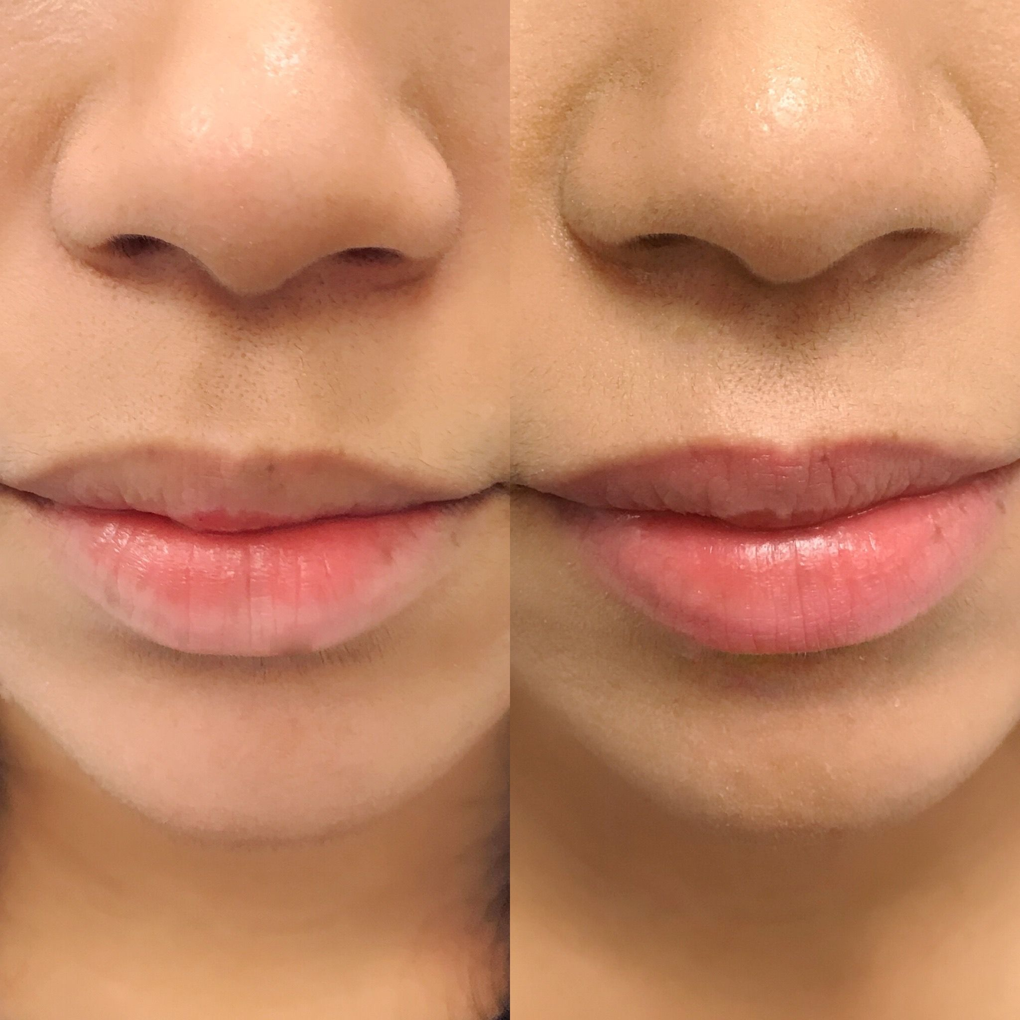 Before and after healed lip blush