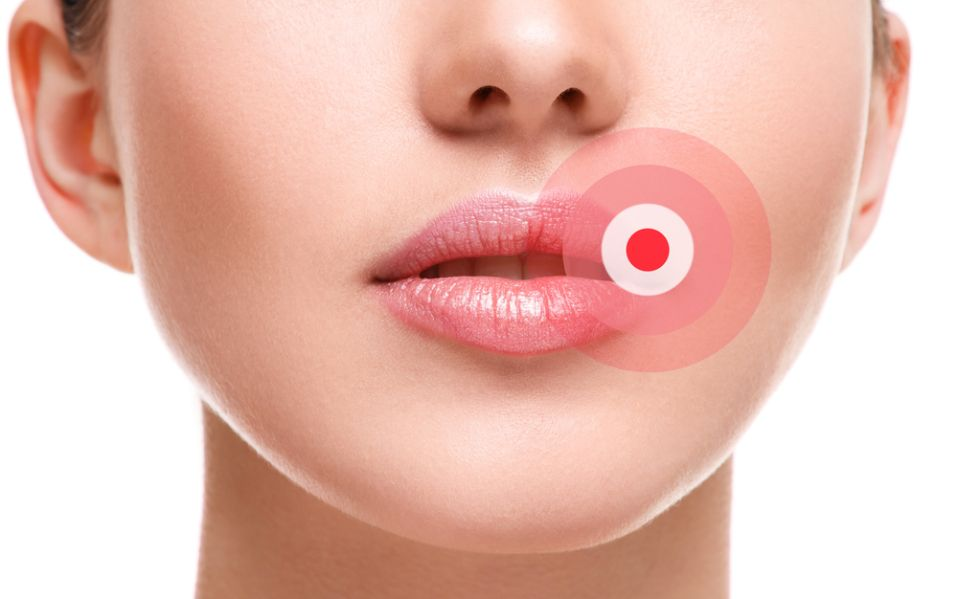 Fever blister after lips tattoo