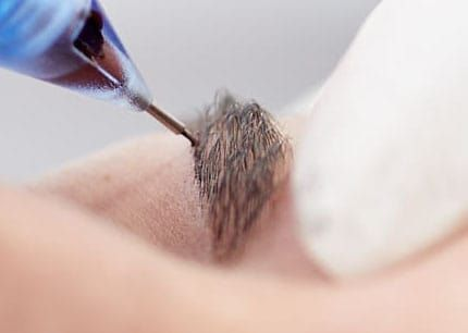 Eyebrows tattoo saline solution removal