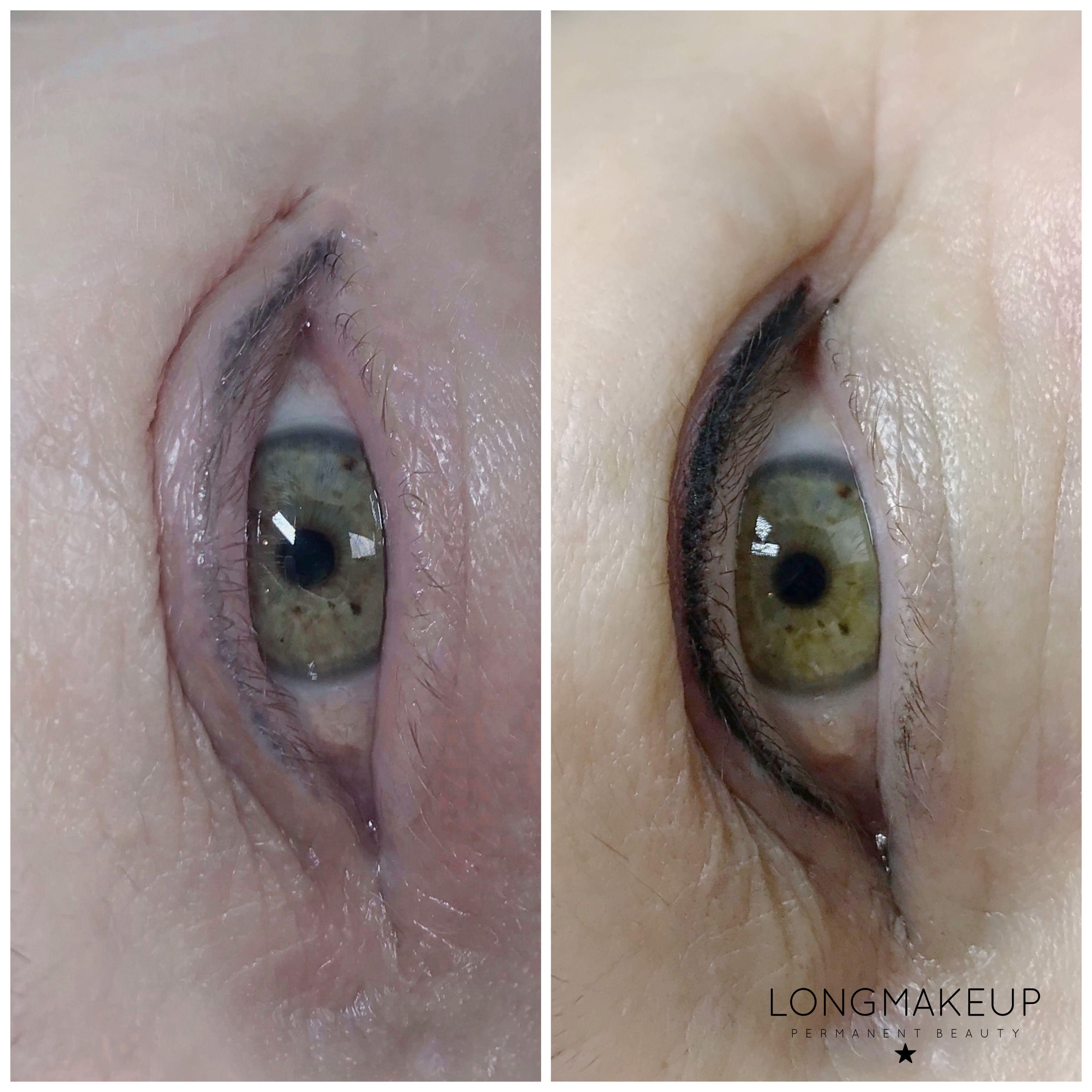 Old eyeliner tattoo color correction