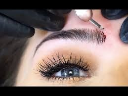Microblading incisions